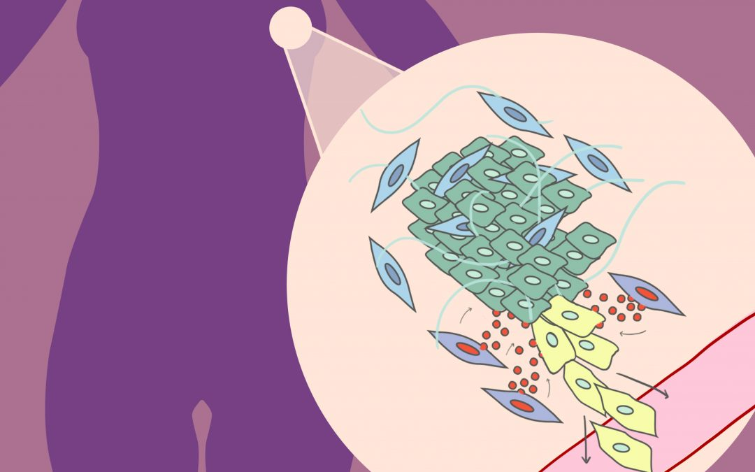 Un gen presente en las células que rodean los tumores es clave en la progresión del cáncer de mama